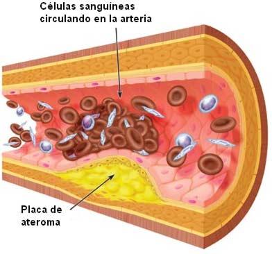 La Arterioesclerosis